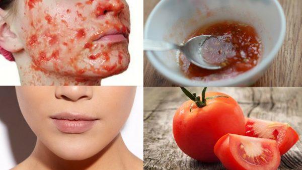 نتيجة بحث الصور عن الطماطم لعلاج حب الشباب